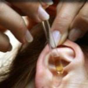 Лечение серных пробок в ушах