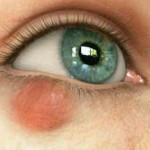 Ячмень на глазу, причины появления и лечение_как заговарить