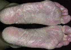 Микоз стоп и ногтей- лечение