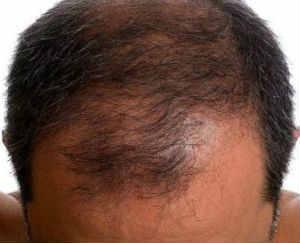 Причины лечение профилактика выпадения волос у мужчин
