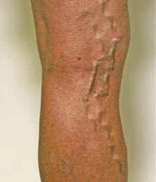Варикоз ног- профилактика