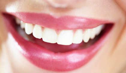 Отбеливание зубов перикисью водорода_в домашних условиях