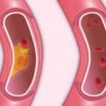 Povyshennyj holesterin v krovi prichiny2