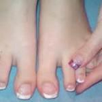 Лечение грибка перекисью водорода_ногти