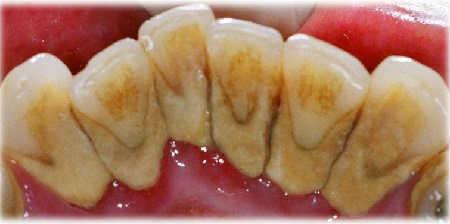 Зубной камень удаление в домашних условиях_как выглядит