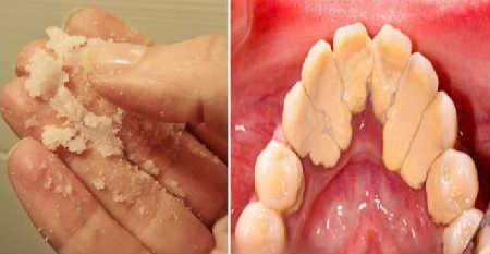 Зубной камень удаление в домашних условиях_причины образования