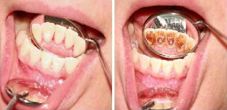 Зубной камень удаление в домашних условиях_нужно ли удалять