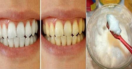 Зубной камень удаление в домашних условиях_народными средствами