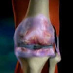 Народное лечение артрита