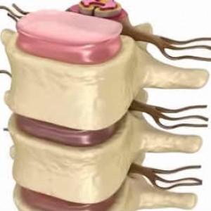 Причины остеохондроза. Методы лечения и профилактика