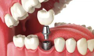 Показания к имплантации зубов