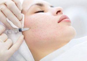 Обучение мезотерапии: инновационной технологии в области эстетической медицины