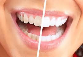 Показания для процедуры отбеливания зубов
