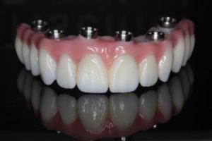 Классификация методик протезирования зубов