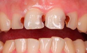 Как лечить пульпит на передних зубах?