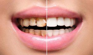 В чем заключается реставрация зубов?